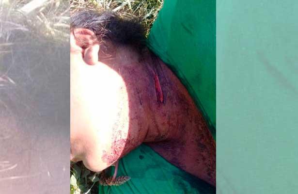 Sobrevive mujer a navajazos en Chalco