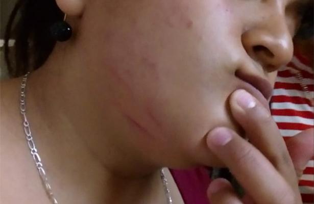 Golpes, arañazos y gas pimienta a familia en Aurrerá por pelea con cajera