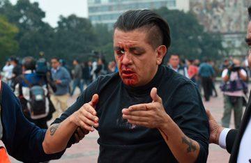 Joven lanza petardo y lesiona a un civil en la UNAM