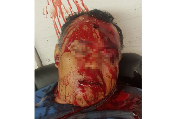 Con tiro de gracia asesina a dueño de un estacionamiento en Álvaro Obregón