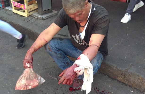 Va a comprar carne y termina navajeado en Iztapalapa