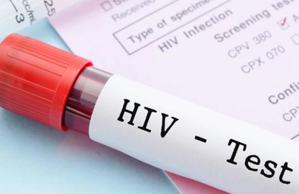 En Londres curan a paciente de VIH; es el segundo caso en el mundo