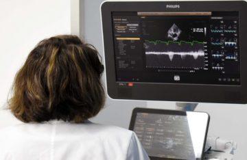 El 90% de los casos del síndrome de corazón roto se presenta en mujeres