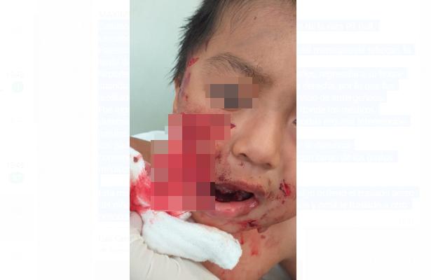 Perro destroza rostro de niño de tres años