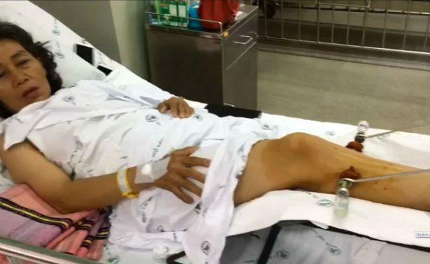 Masajista rompe la pierna a un cliente y todavía exige que le pague