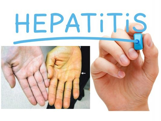 Confirman un caso de hepatitis A en El Centro, CA