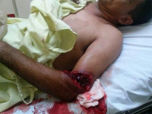 Pandilleros disparan a hombre en convivio en la 10 de Abril