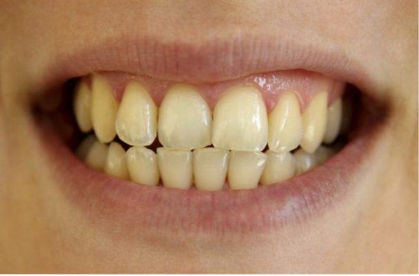 La caries es la enfermedad bucal que más padecen los sanluisinos