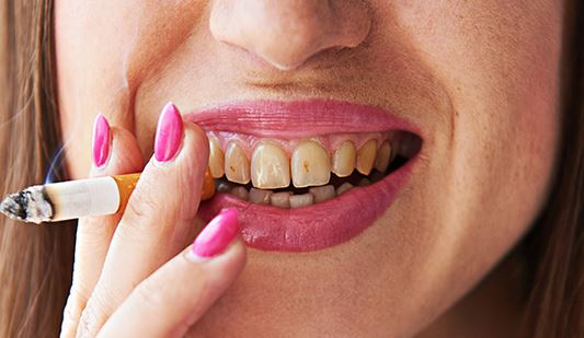 Se han incrementado casos de cáncer bucal